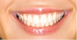 gilmer cosmetic dentistry - smile image