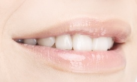gilmer cosmetic dentistry -inlays and onlays