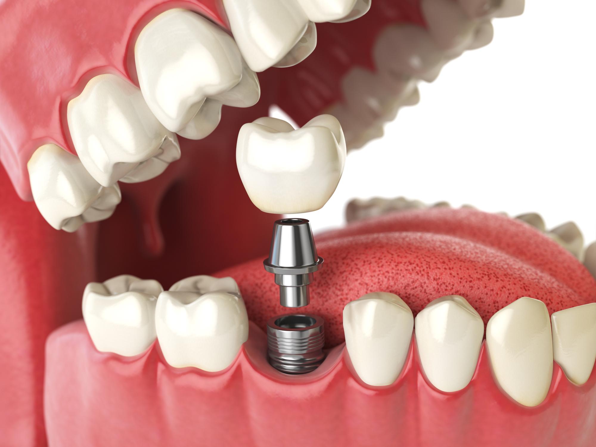 dental implant gilmer t x