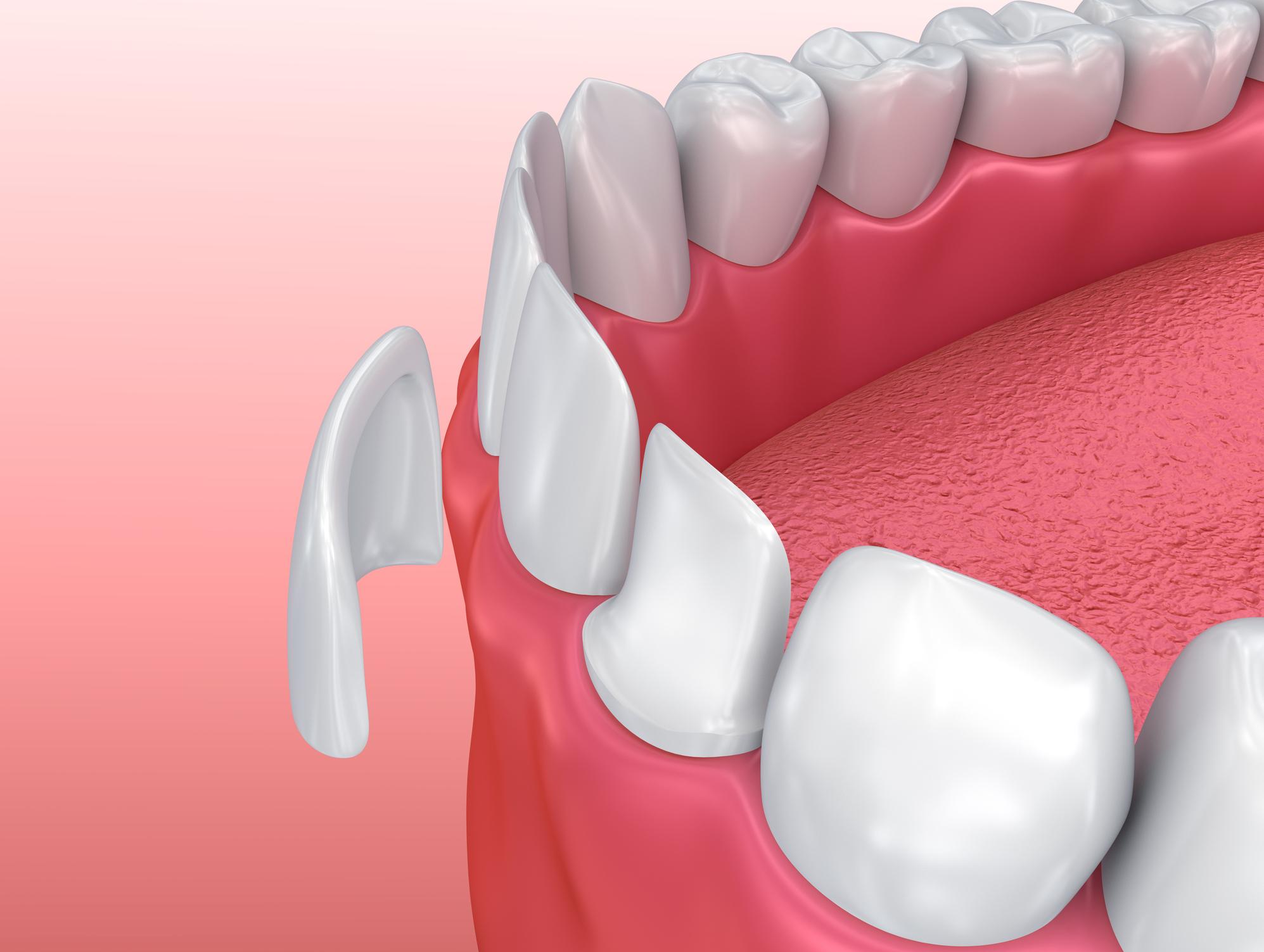 gilmer cosmetic dentistry - veneers